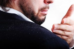 Dandruff - Causes & Remedies To Avoid Itchy Scalp