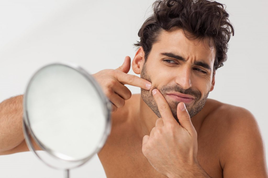 How to cure pimples for men