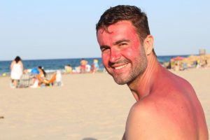 How To Remove Sun Tan For Men - Simple & Effective Ways