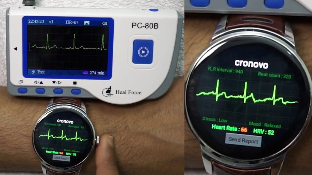 Wearable Fitness Devices  ECG monitor
