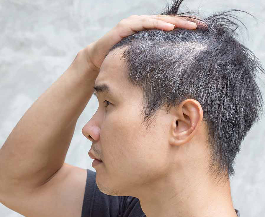 what causes premature graying of hair