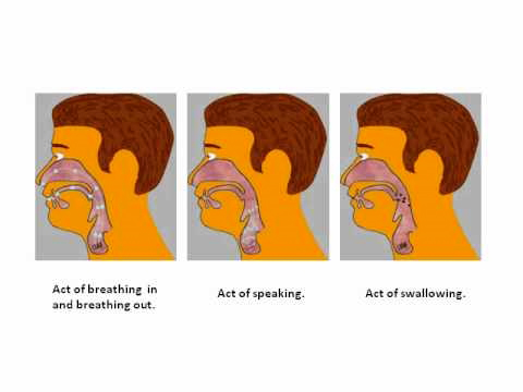 causes of stuttering