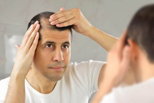 should you hide your baldness