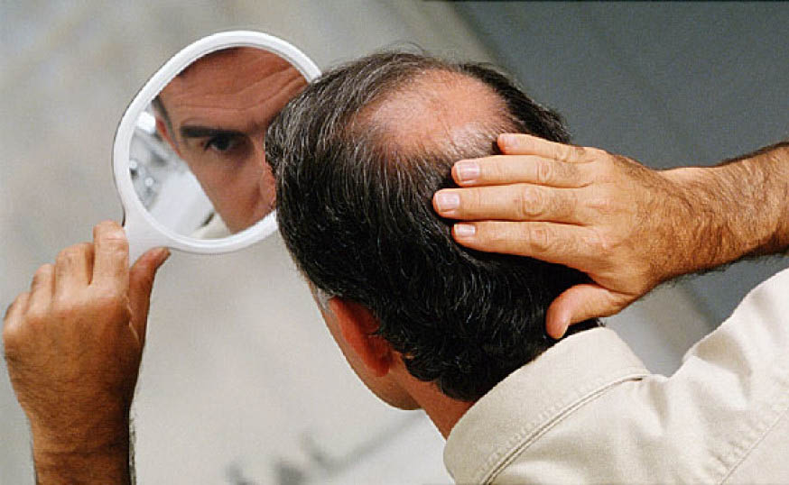 What Causes Baldness In Men