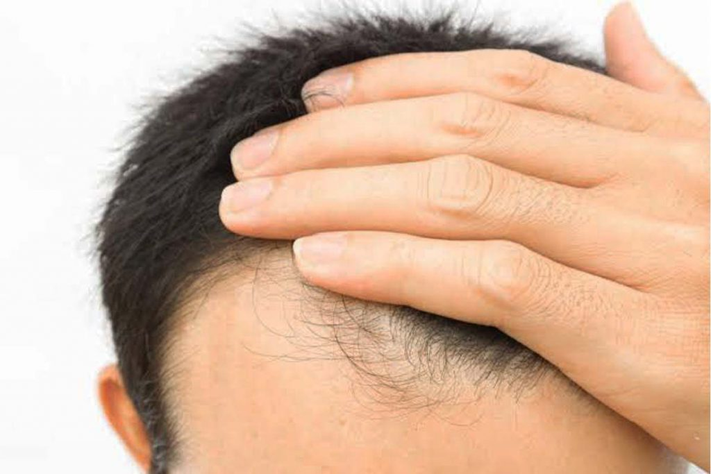 What is Hair Thinning for men