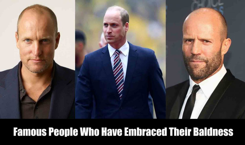 famous People Who Have Embraced Their Baldness