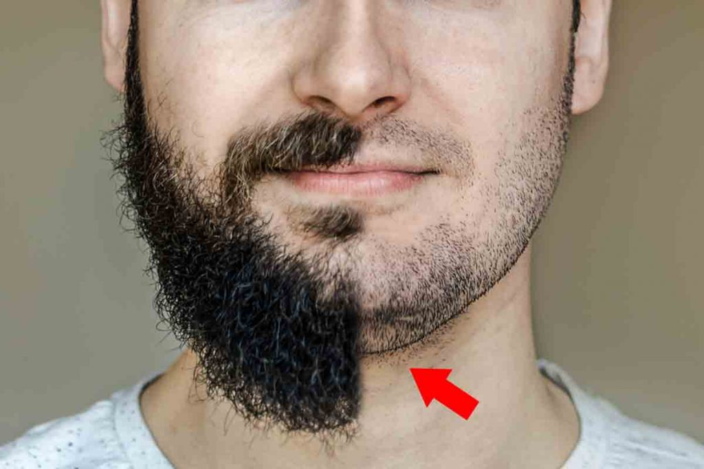 Hide Your Double Chin With A Beard