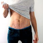 How To Hide Stretch Marks For Men Effectively