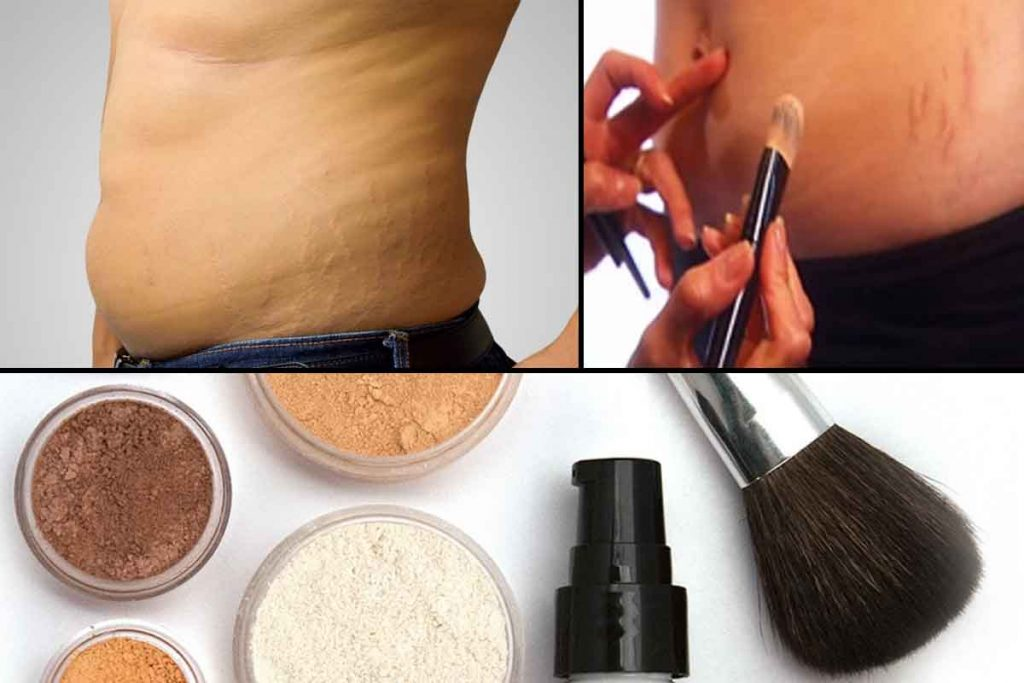 How to cover up stretch marks with makeup for men