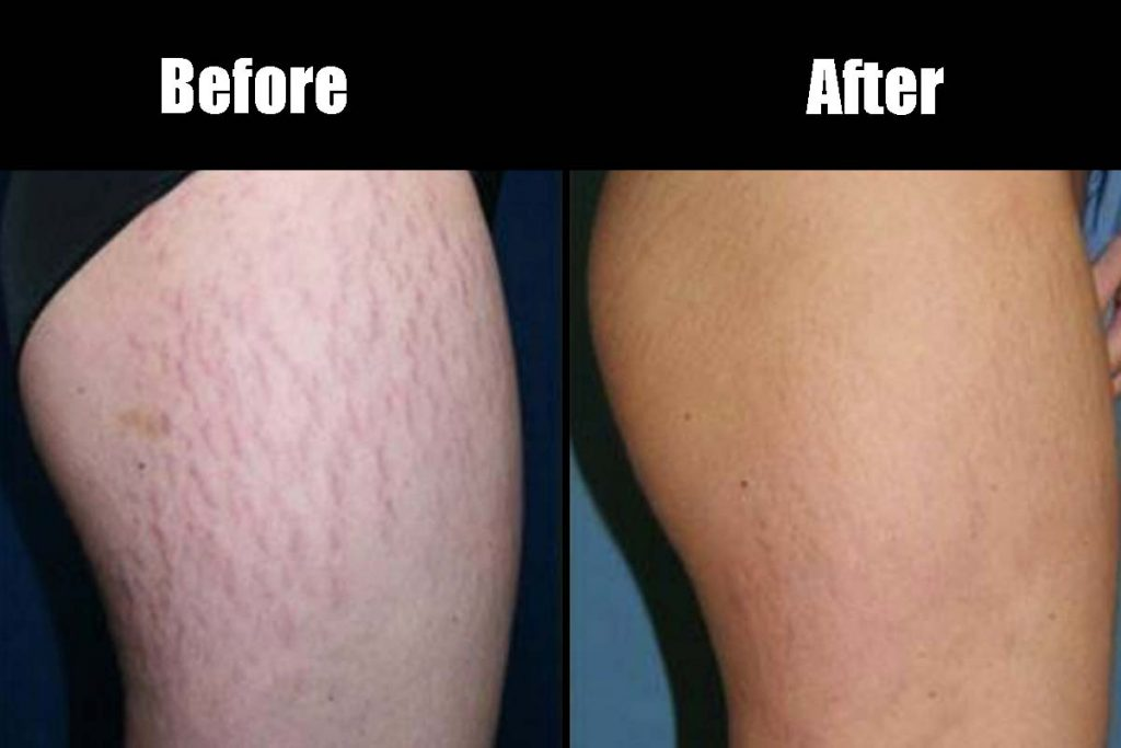 How to get rid of stretch marks naturally at home
