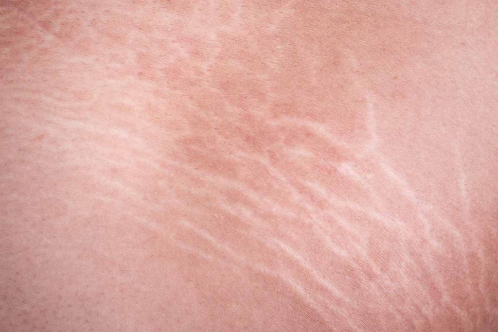 What are stretch marks for men