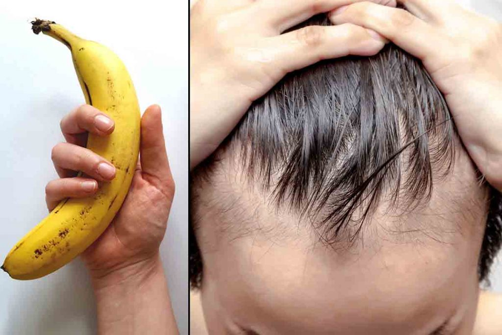 Does Masturbation Cause Hair Loss In Men