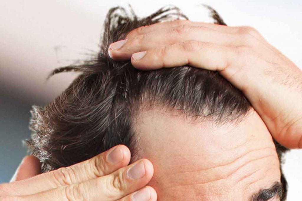 Does excessive masturbation cause hair loss in men