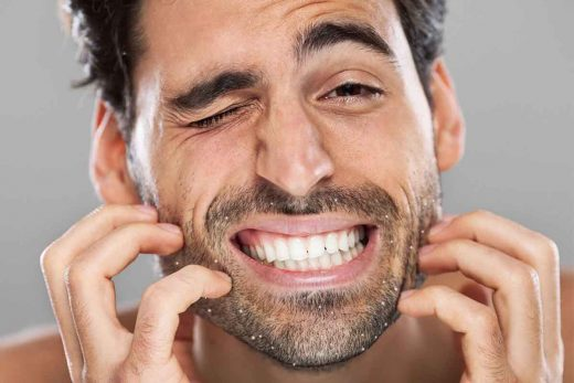 5 Effective Ways To Get Rid Of Beard Dandruff