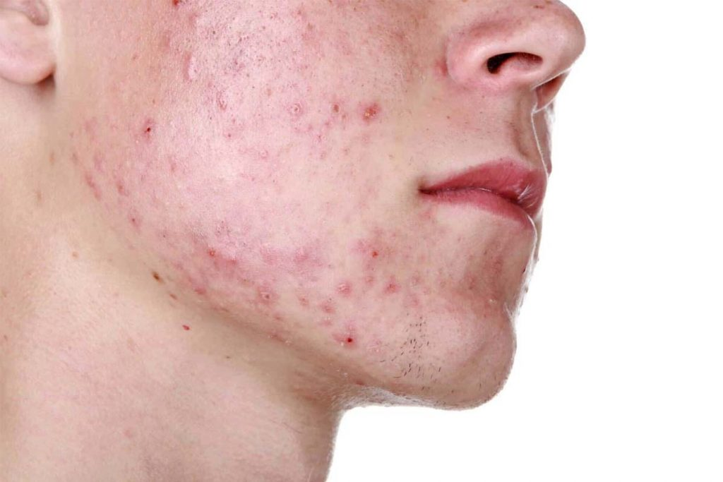 Green Tea Helps To Reduce Acne In Men