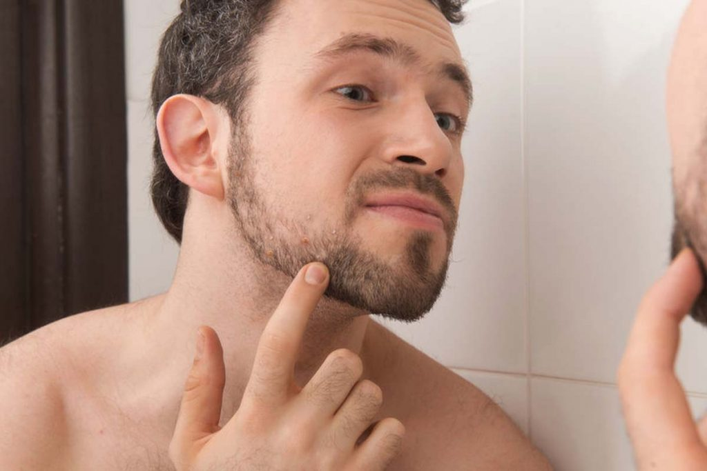 How To Get Rid Of Beard Acne