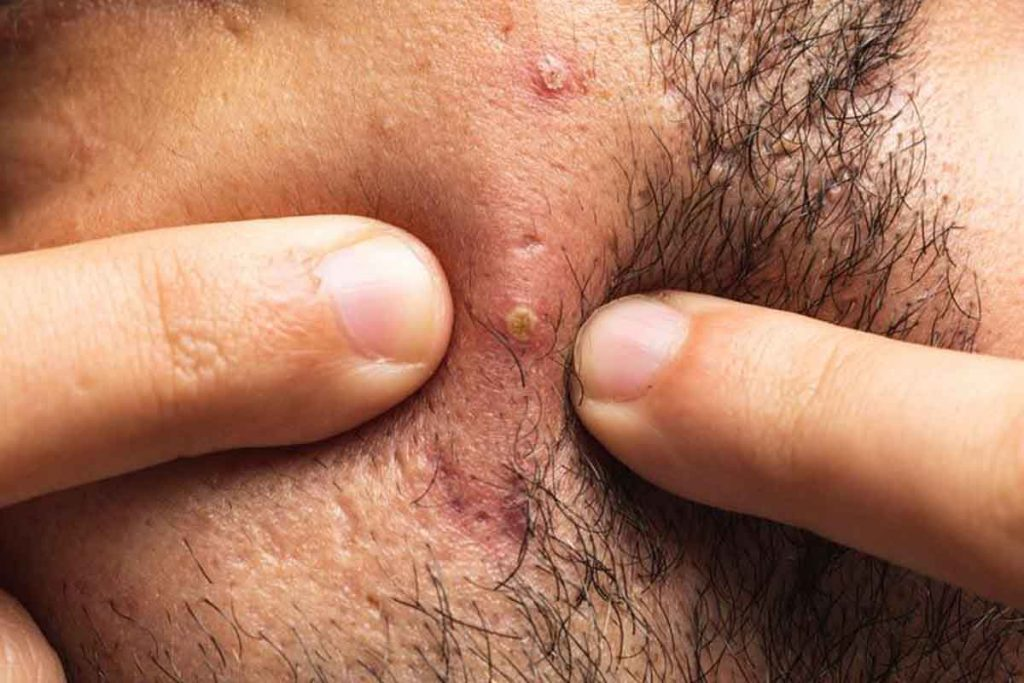 How to get rid of beard pimple easily