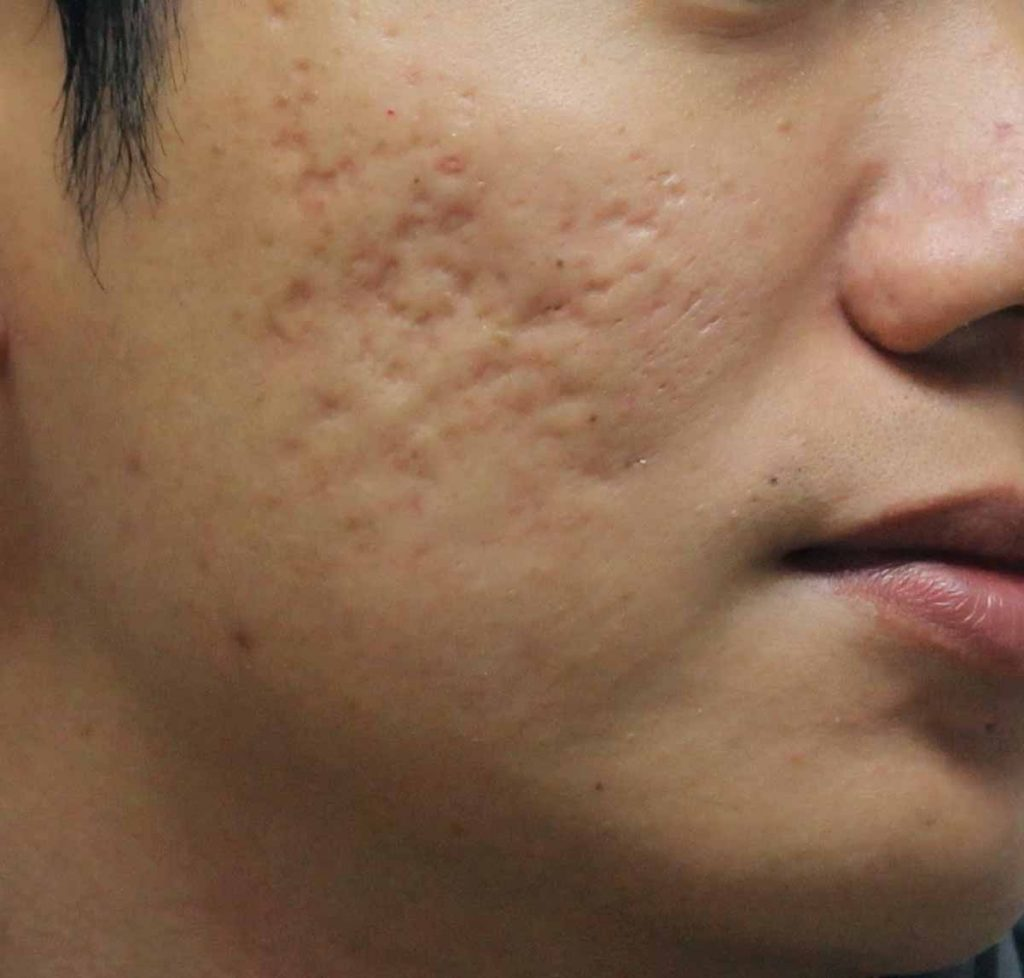 What Are Acne Scars For Men