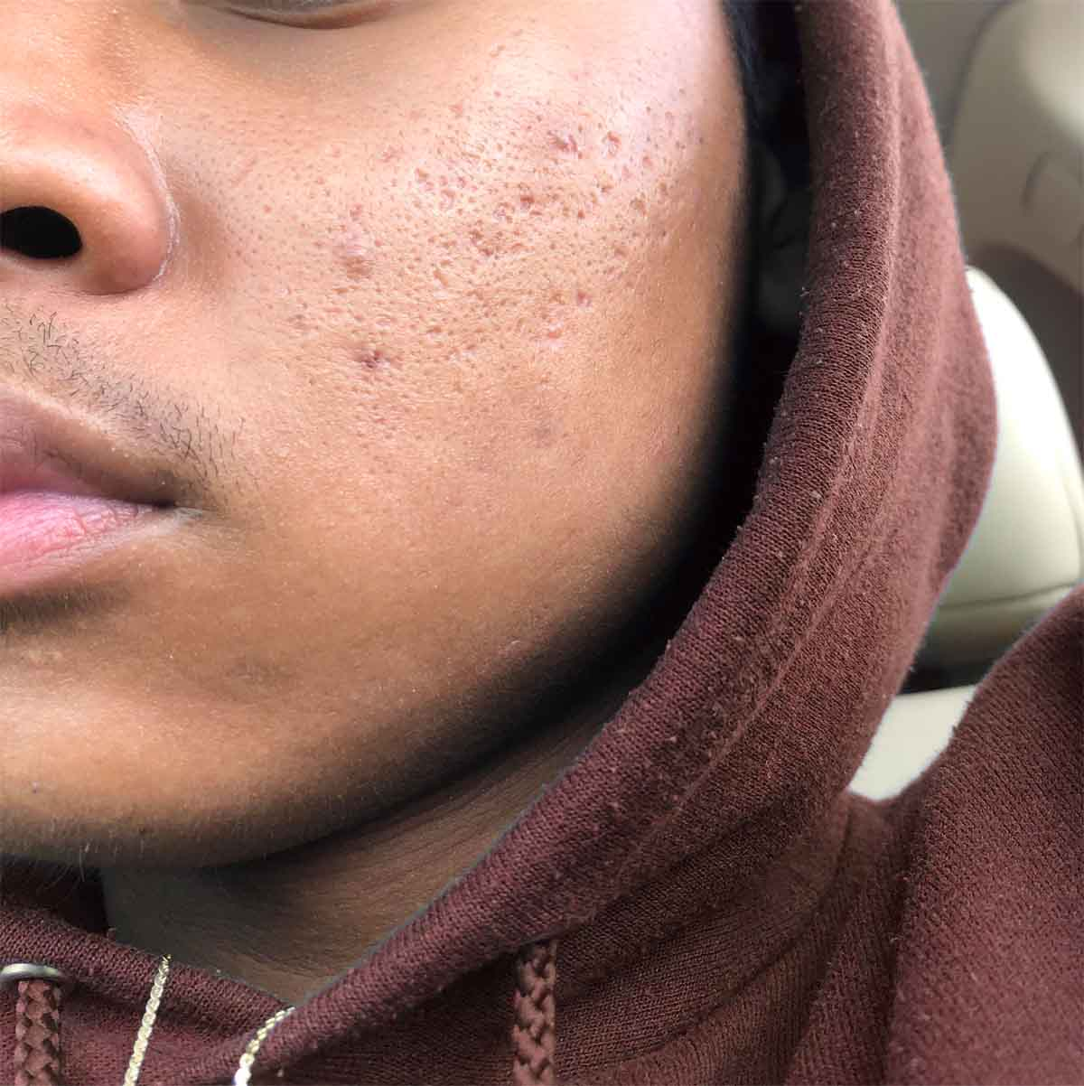 What Causes Acne Scars In Men