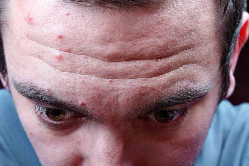 Main reasons of forehead acne in men