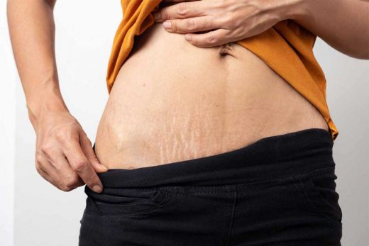 Best Stretch Marks Removal Creams For Men In India