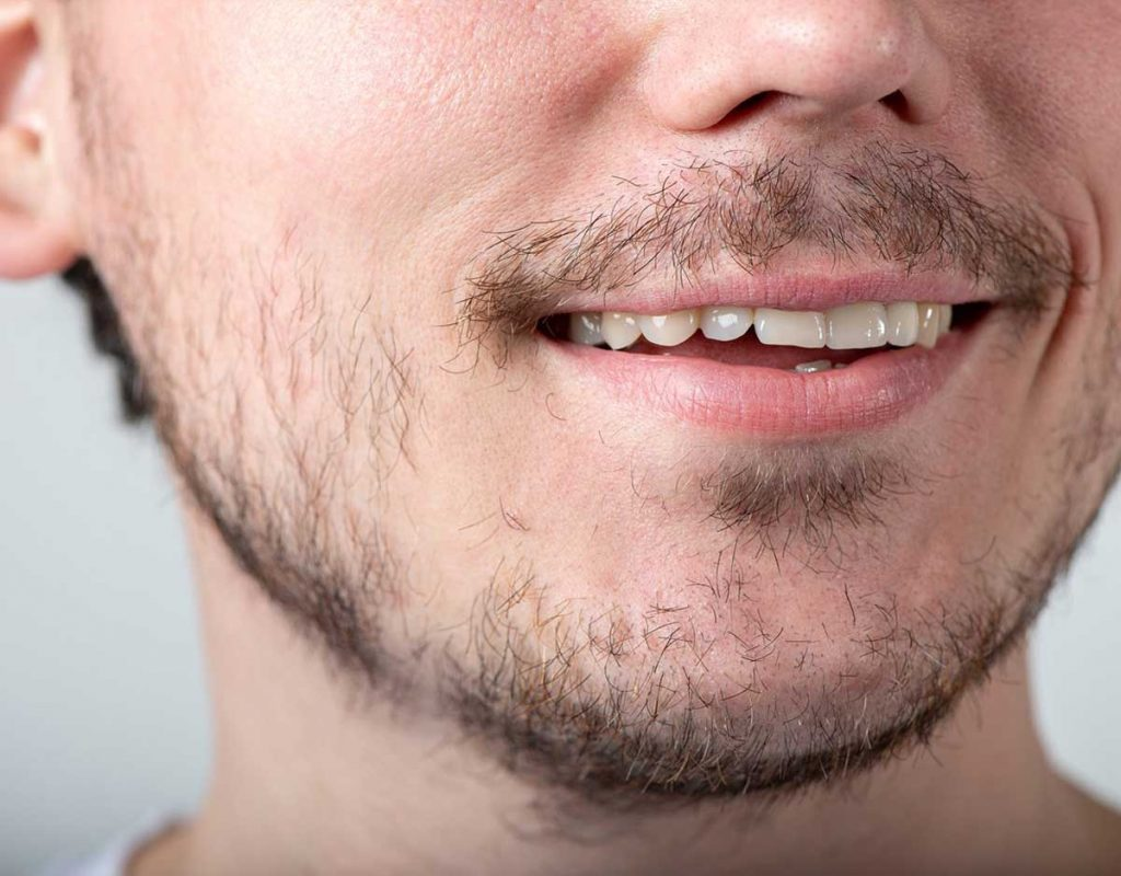 Beard Styles For Men With Less Facial Hair