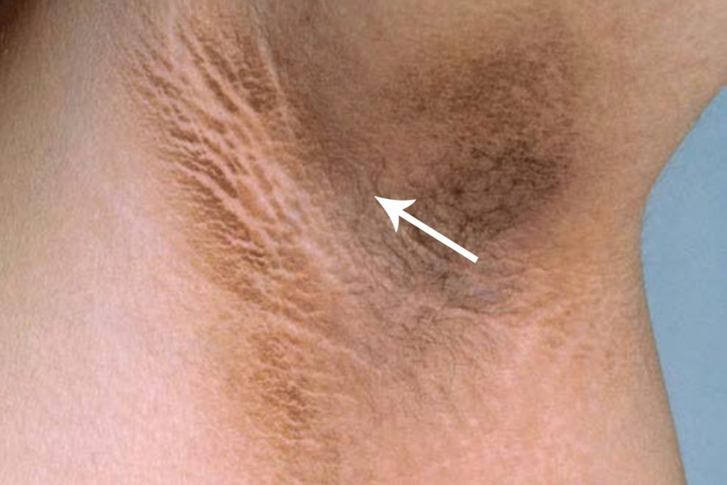 What Is Acanthosis Nigricans and how to whiten underarms fast at home